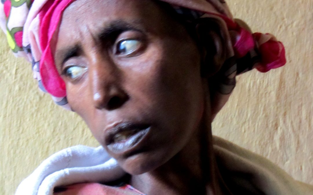 Debre with Ovarian cancer